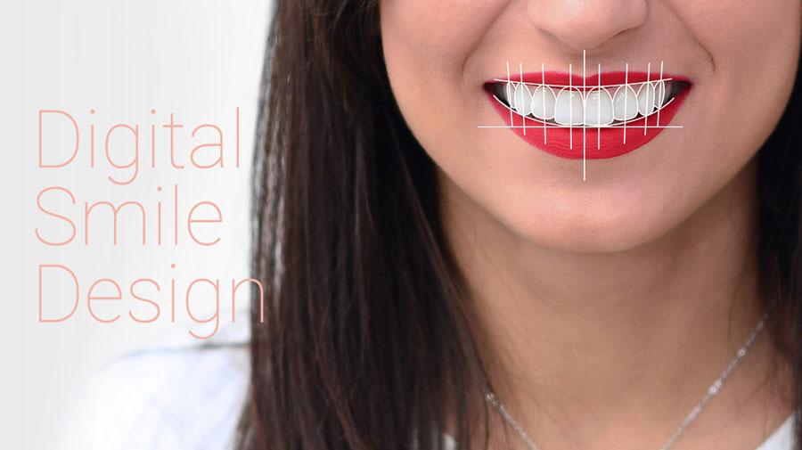 digital-smile-design-dsd